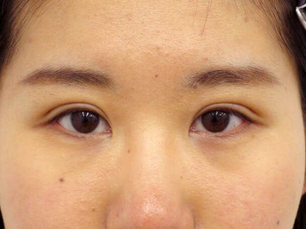 No136 21歳 二重埋没法(末広・下垂修正) 術後1ヶ月の症例写真