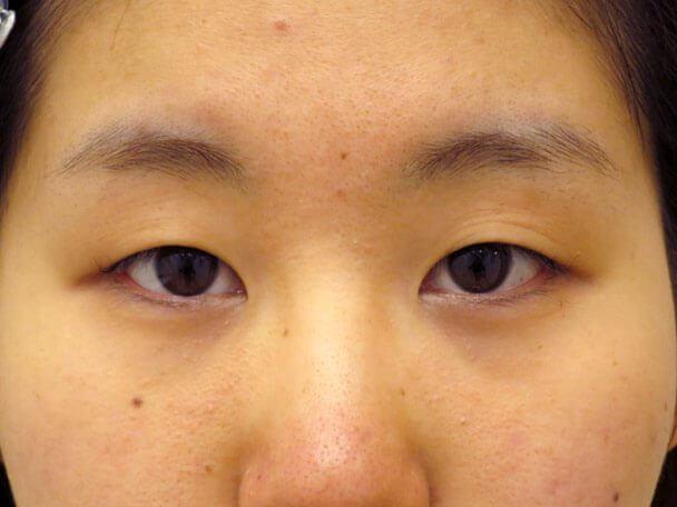 No136 21歳 二重埋没法(末広・下垂修正) 術前 症例写真