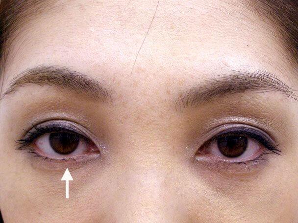 No.65 F様 31歳 二重埋没法(右目のみ)術後1ヶ月(メイクあり)の症例写真
