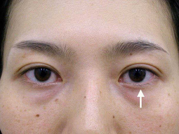 No.79 30歳 他院OP後(両側小切開手術後8年)の修正手術(左目を右目に合わせて固定)術後3日の症例写真