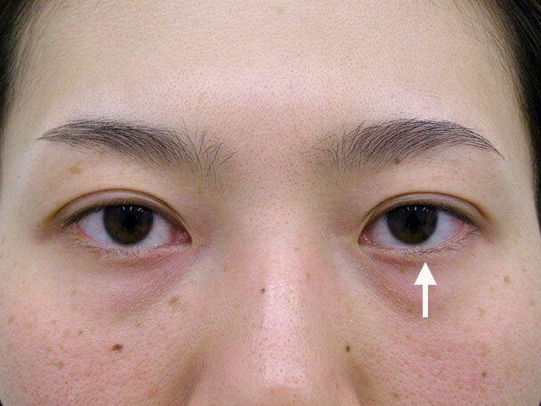 No.79 30歳 他院OP後(両側小切開手術後8年)の修正手術(左目を右目に合わせて固定)術後1ヶ月の症例写真