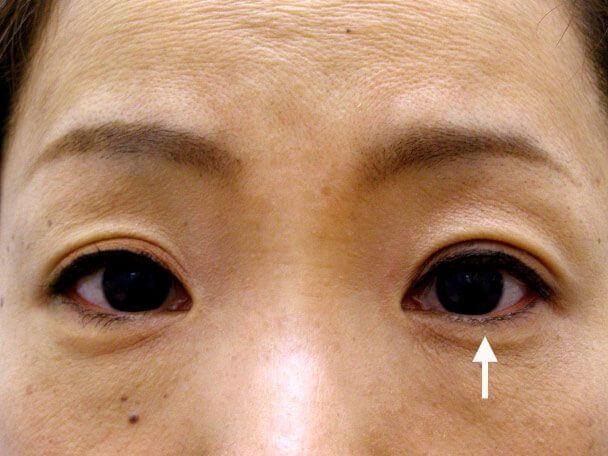No.84 41歳 二重埋没法(左目のみ下垂修正含む)術後3日の症例写真