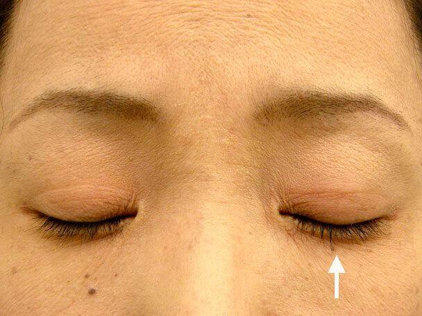 No.84 41歳 二重埋没法(左目のみ下垂修正含む)術後1週間(目を閉じた状態)の症例写真