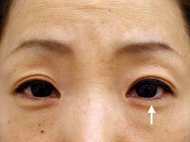 No.84 41歳 二重埋没法(左目のみ下垂修正含む)術後1ヶ月(メイクあり)の症例写真