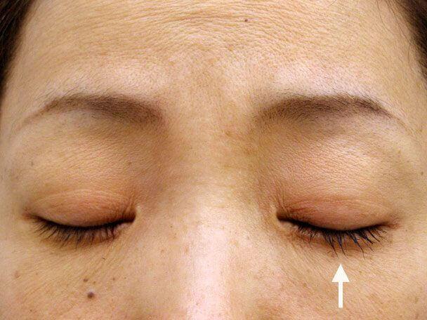 No.84 41歳 二重埋没法(左目のみ下垂修正含む)術後1ヶ月(メイクあり目を閉じた状態)の症例写真