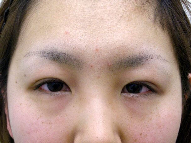 No.92 21歳二重埋没法(末広型・下垂修正)術直後の症例写真