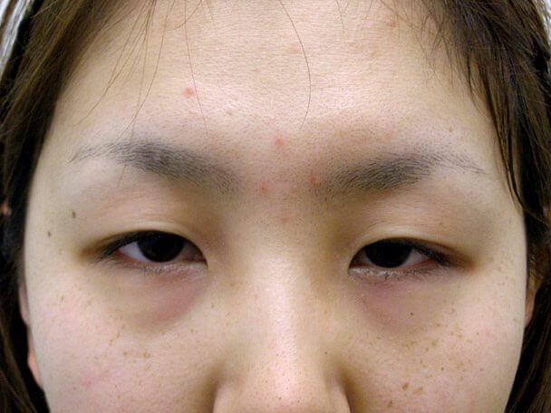 No.92 21歳二重埋没法(末広型・下垂修正)術前の症例写真