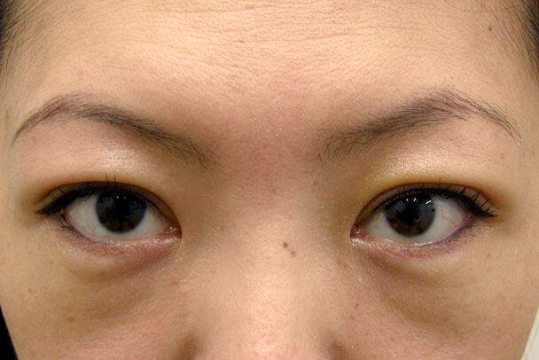 No.93 二重埋没法(末広型・下垂修正)術後3日(メイクあり)の症例写真