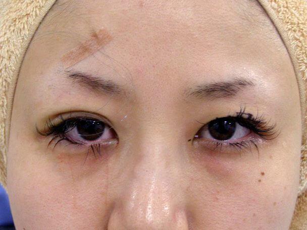 No.95 28歳 二重埋没法(末広型・下垂修正) 術中の症例写真