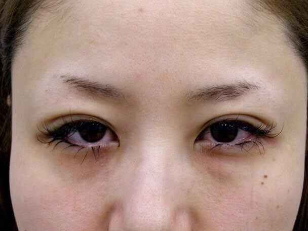 No.95 28歳 二重埋没法(末広型・下垂修正) 術直後の症例写真