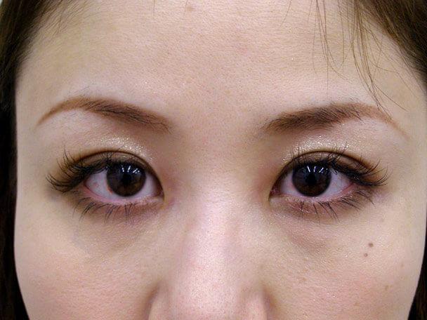 No.95 28歳 二重埋没法(末広型・下垂修正) 術後1ヶ月(メイクあり)の症例写真