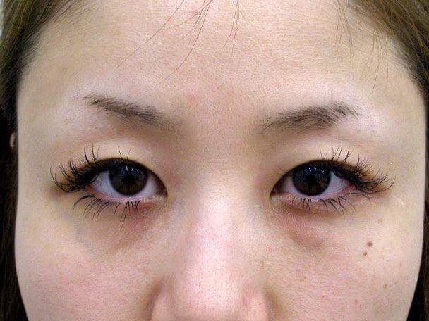 No.95 28歳 二重埋没法(末広型・下垂修正) 術前の症例写真