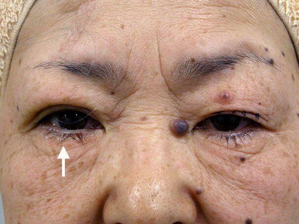 No.96 61歳 埋没式挙筋短縮術 たるみたくし上げ 術中の症例写真
