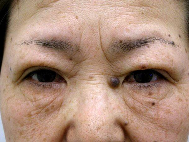 No.96 切らない眼瞼下垂(たるみ)術後30分の症例写真