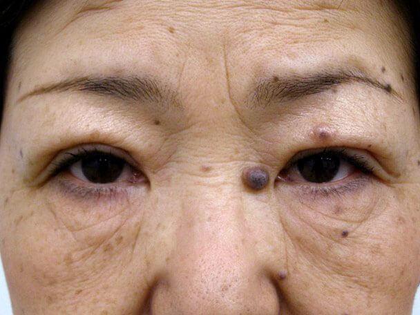 No.96 切らない眼瞼下垂(たるみ)術後4日の症例写真