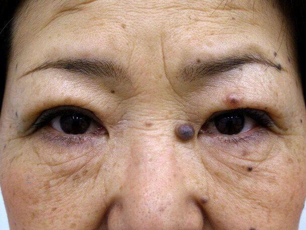 No.96 切らない眼瞼下垂(たるみ)術後1週間の症例写真