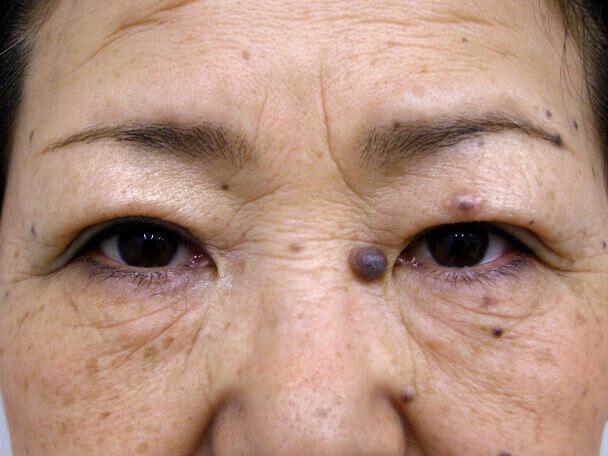 No.96 切らない眼瞼下垂(たるみ)術後1ヶ月の症例写真