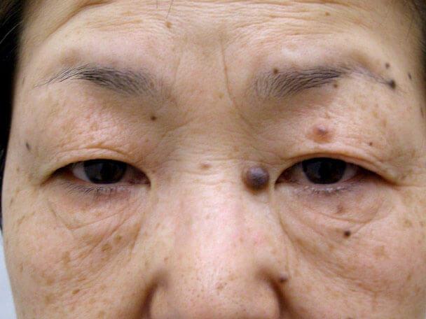 No.96 切らない眼瞼下垂(たるみ)術前の症例写真