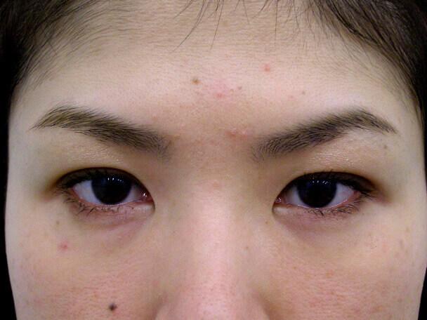 No.97 29歳二重埋没法(幅狭末広型)術後1ヶ月の症例写真