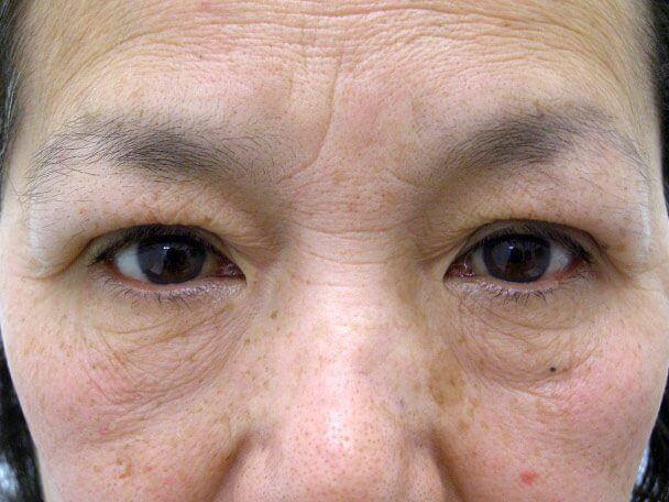 No.98 59歳 二重埋没法(下垂修正) 術直後の症例写真