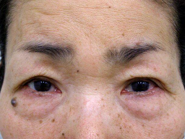 No.99 切らない眼瞼下垂(たるみたくし上げ) 術直後の症例写真