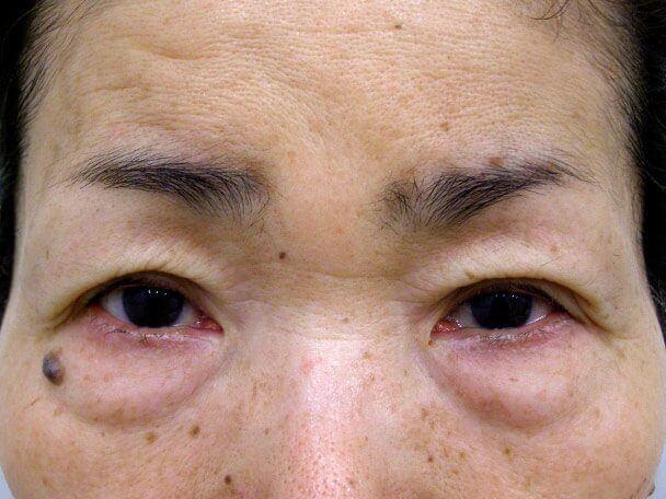No.99 切らない眼瞼下垂(たるみたくし上げ) 術後30分の症例写真
