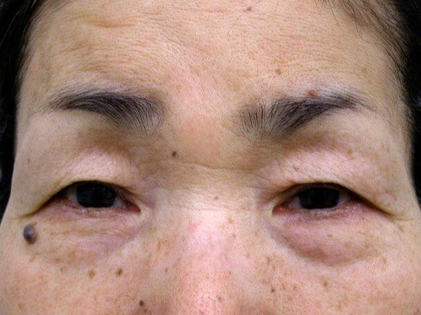 No.99 切らない眼瞼下垂(たるみたくし上げ) 術前 症例写真