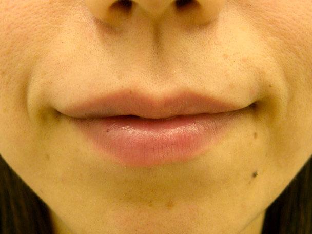 No.3 33歳 セクシーフルリップ(ヒアルロン酸) 術直後の症例写真