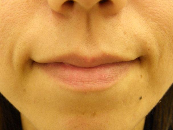 No.3 33歳 セクシーフルリップ(ヒアルロン酸) 術前 症例写真