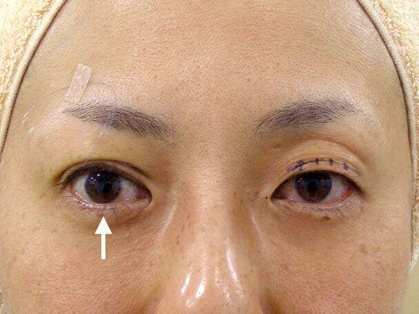 No.116 48歳 切らない眼瞼下垂術中の症例写真