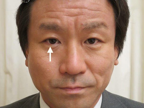 35歳男性 先天性眼瞼下垂・右目切らない眼瞼下垂 術後4年6ヶ月の症例写真