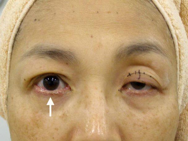 No.124 重度のコンタクトレンズ性眼瞼下垂 術中の症例写真