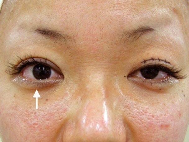 No.9 30歳 二重+眼瞼下垂 術中の症例写真