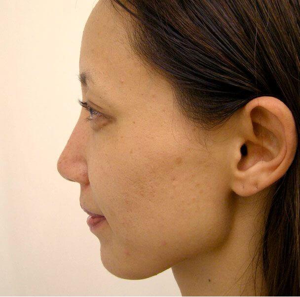 No.5E 鼻尖軟骨形成+耳介軟骨移植(オープンライノプラスティ)横 術後3ヶ月の症例写真