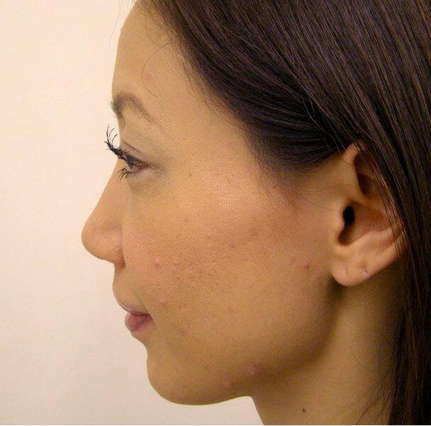 No.5E 鼻尖軟骨形成+耳介軟骨移植(オープンライノプラスティ)横 術後8ヶ月の症例写真