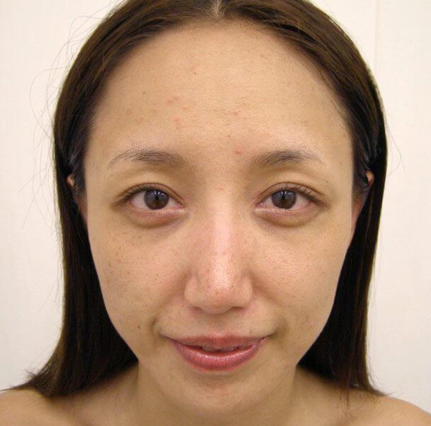 No.5E 鼻尖軟骨形成+耳介軟骨移植(オープンライノプラスティ)顔全体 術後3ヶ月の症例写真