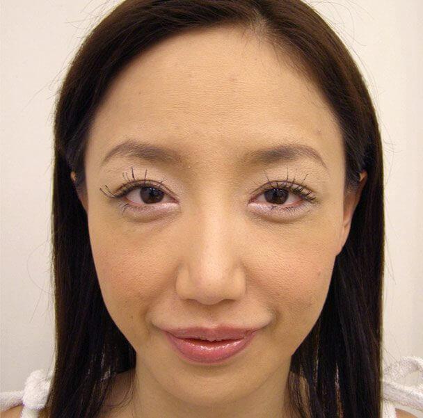 No.5E 鼻尖軟骨形成+耳介軟骨移植(オープンライノプラスティ)顔全体 術後8ヶ月の症例写真