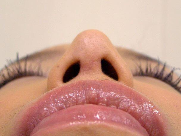 No.5E 鼻尖軟骨形成+耳介軟骨移植(オープンライノプラスティ)術後8ヶ月の症例写真