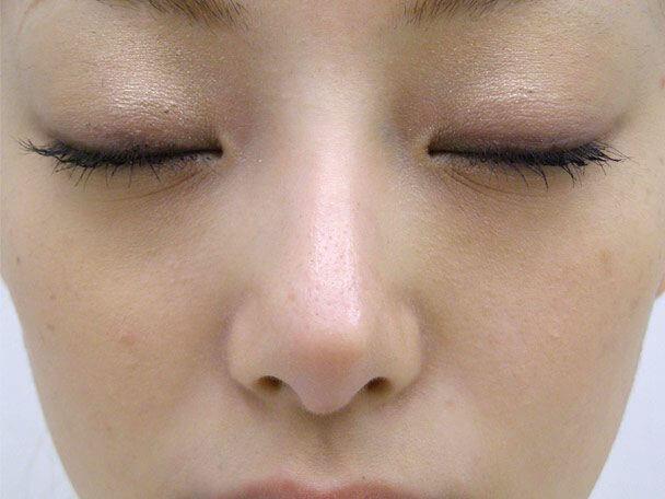 No.6F 隆鼻+鼻尖軟骨形成+左耳珠・耳介軟骨移植(オープンライノプラスティ)正面 術後6ヶ月の症例写真