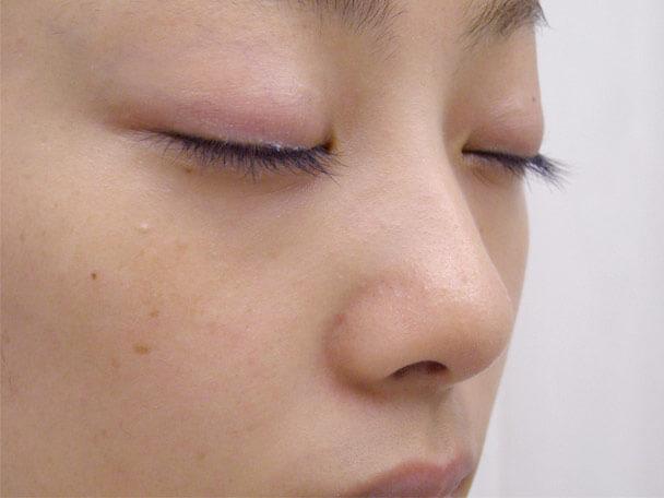 No.6F 隆鼻+鼻尖軟骨形成+左耳珠・耳介軟骨移植(オープンライノプラスティ)横 術前 症例写真