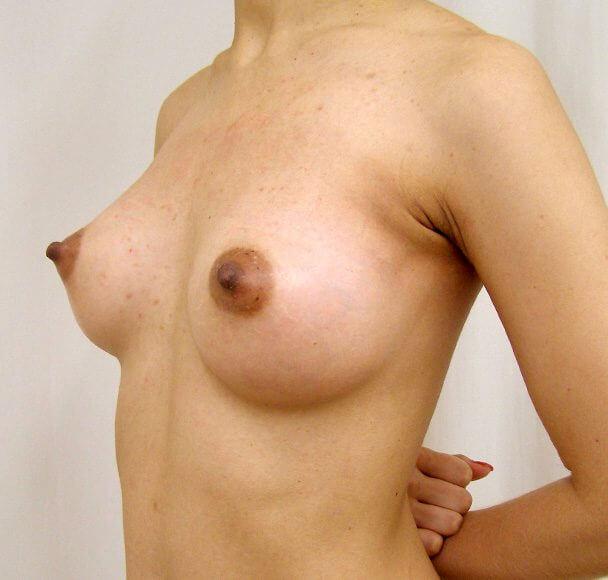 No.11 豊胸 横 術後1ヶ月の症例写真