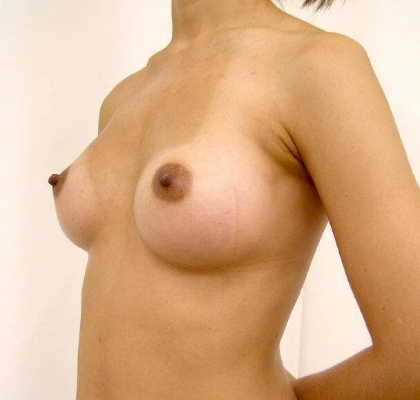 No.11 豊胸 横 術後2ヶ月の症例写真