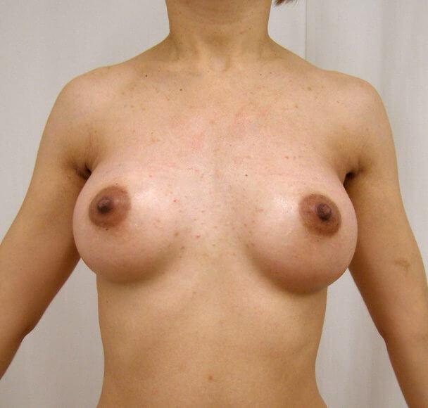 No.11 豊胸 正面 術後1ヶ月の症例写真