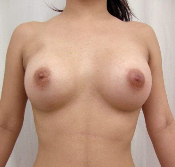 No.1 豊胸 正面 術後1ヶ月の症例写真