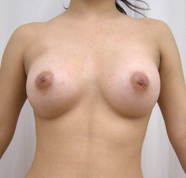 No.1 豊胸 正面 術後2ヶ月の症例写真
