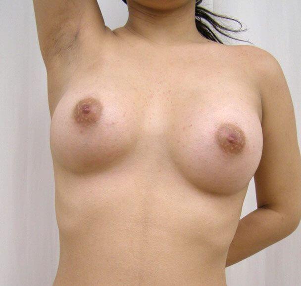 No.1 豊胸 正面(右脇) 術後2ヶ月の症例写真