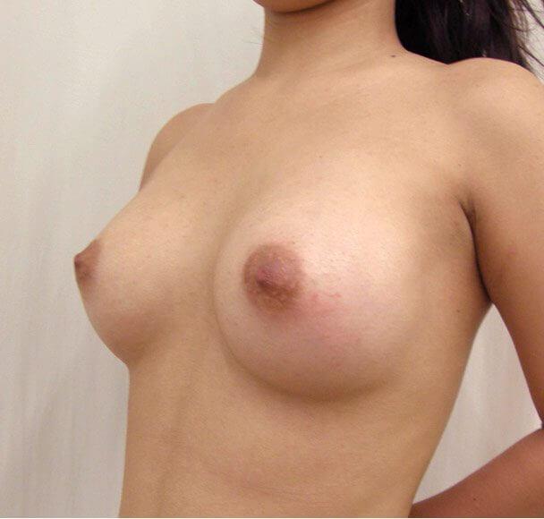 No.1 豊胸 横 術後1ヶ月の症例写真