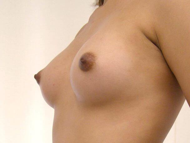 No.4 豊胸 横 術後2ヶ月の症例写真