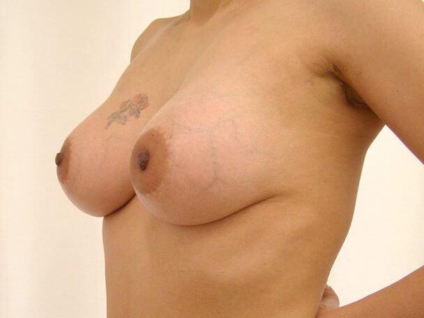 No.5 豊胸 横 術後3ヶ月の症例写真