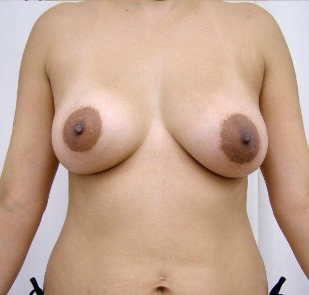 No.7豊胸 正面 術後7ヶ月の症例写真